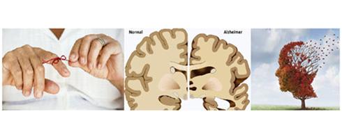 Alzheimerova choroba a proces stárnutí